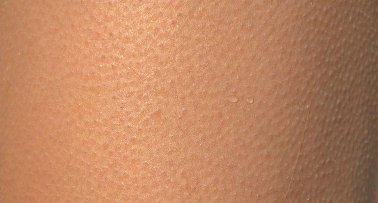 ¿Por qué se eriza la piel por el frío?