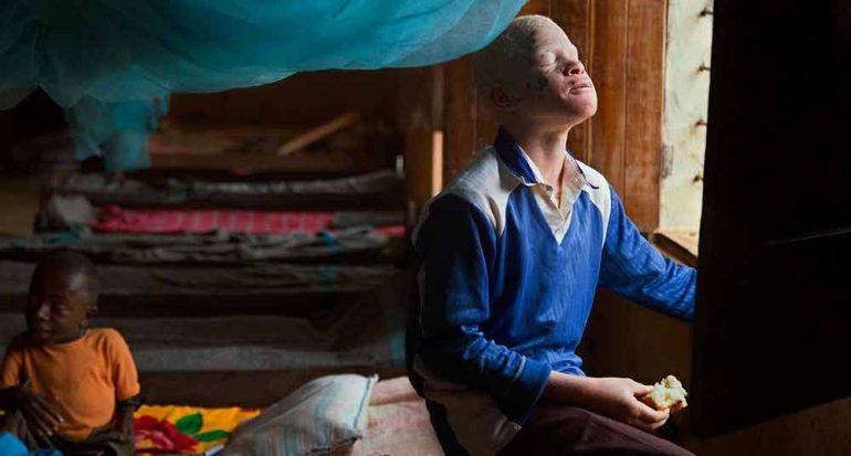 Buscan poner fin a los abusos contra albinos
