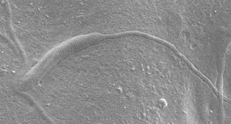 Descubren esperma de gusano de 50 millones de años