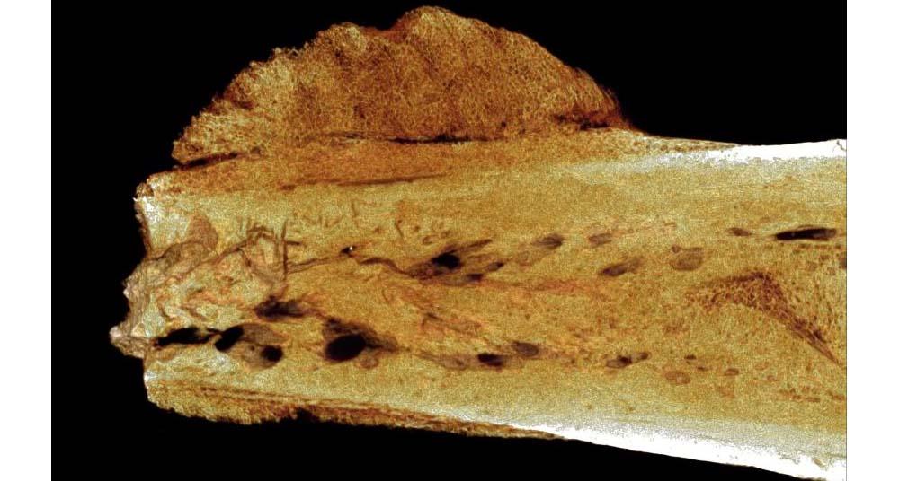 Encuentran el primer cáncer humano en un hueso de 1.7 millones de ...
