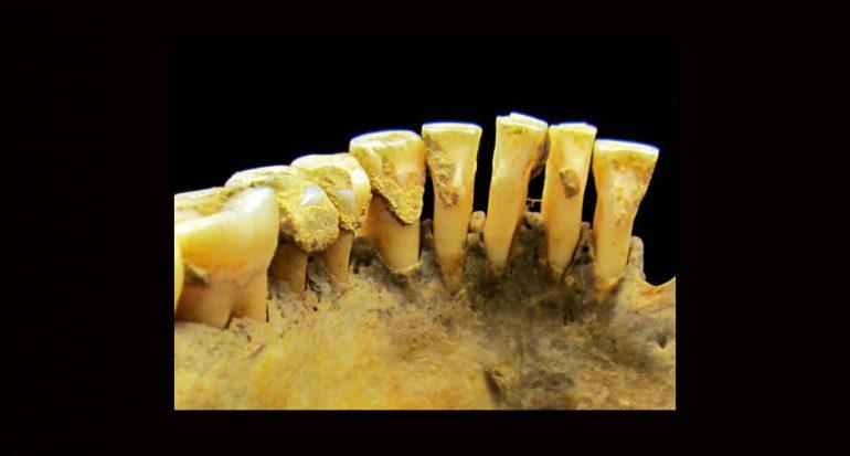 Las pistas en la placa dentobacteriana
