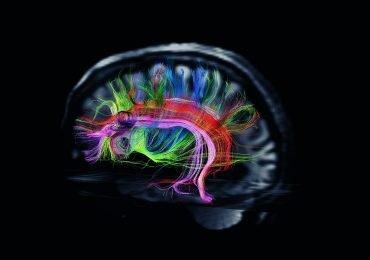 Los secretos del cerebro