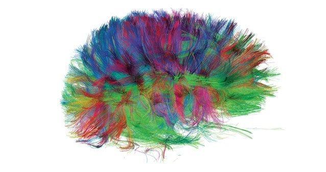 Nuevas miradas al cerebro